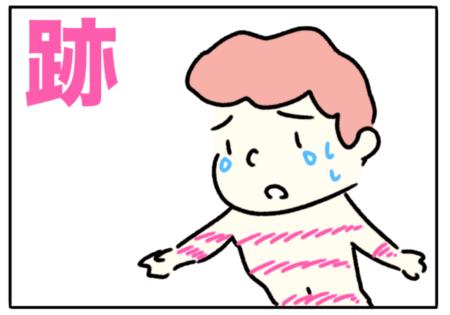 trace(跡)